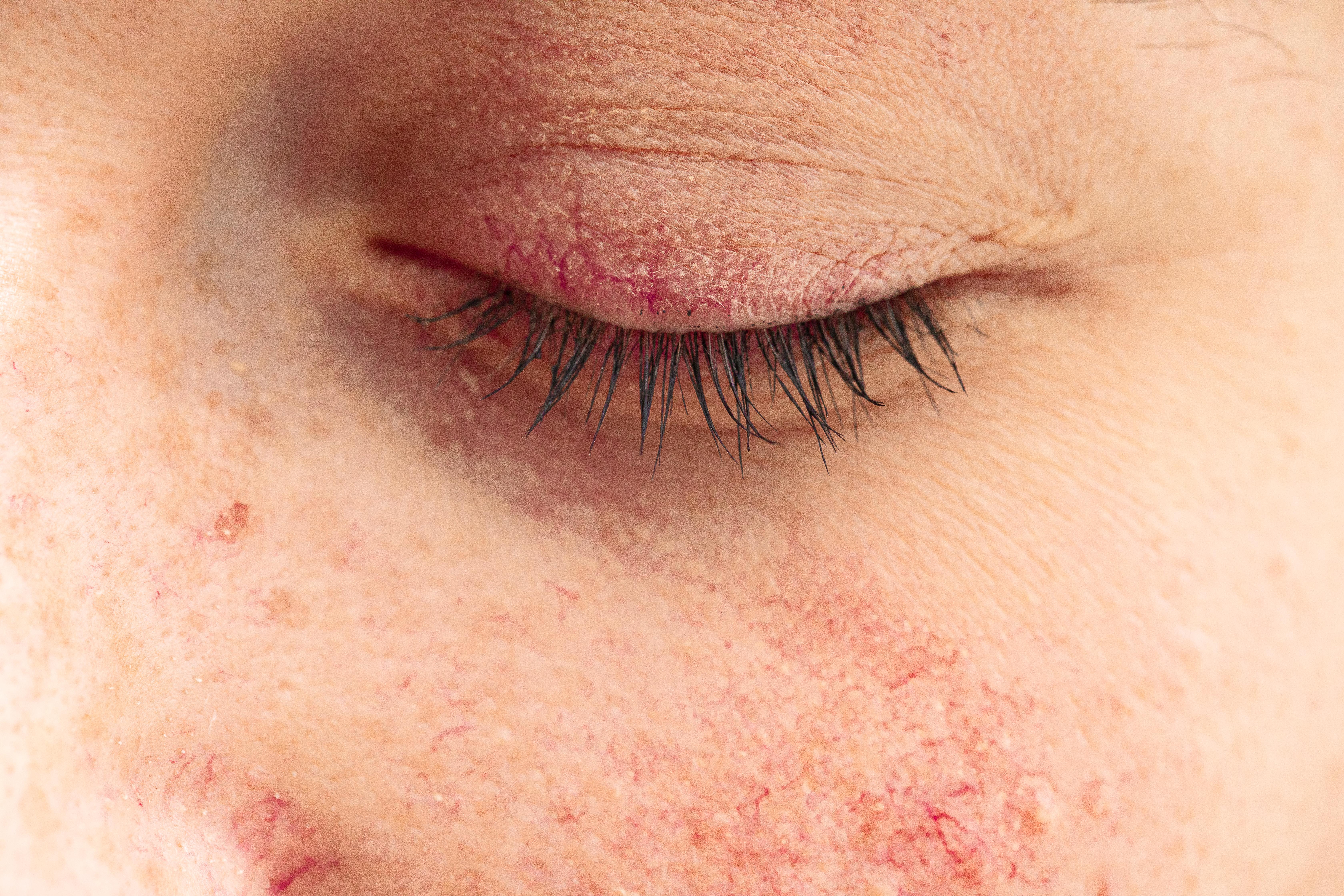 Ovu kožnu bolest nije moguće u potpunosti izliječiti