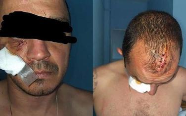 Povrede koje je Ivanović zadobio od policijskih službenika