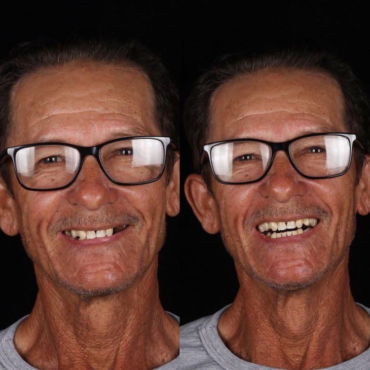 Prije i poslije (foto: Por1sorriso)