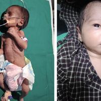 Beba je u bolnicu dovedena u kritičnom stanju