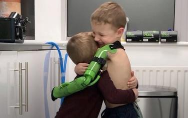 Zagrljaj Džejkoba i njegovog brat kada je postalo jasno da nova ruka odgovara