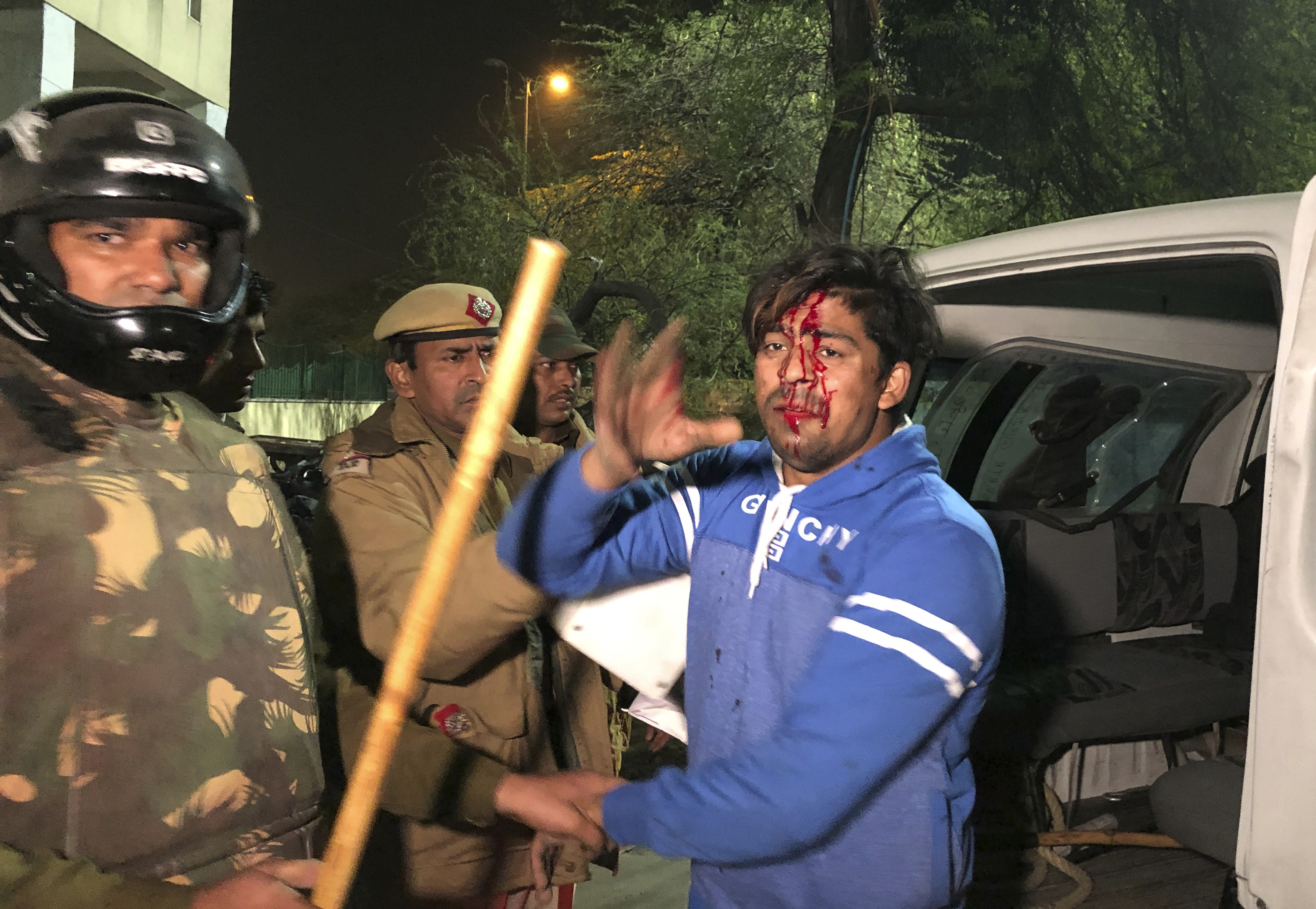 Jedan od povrijeđenih demonstranata