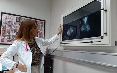 Žene nakon 40. godine obavezno da urade prvu mamografiju: Vučaj Ćirilović